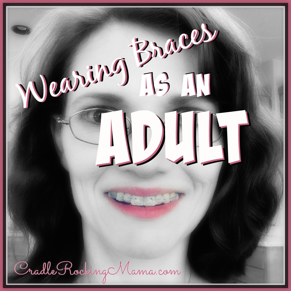 Wearing Braces as an Adult CradleRockingMama.com